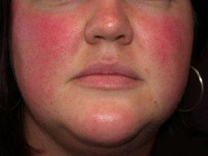 кожные заболевания