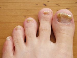 грибок ног