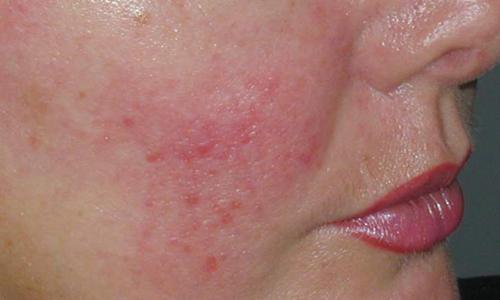 Купероз кожи лица - как избавиться от капиллярной сетки.