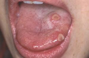 Язвочки во рту