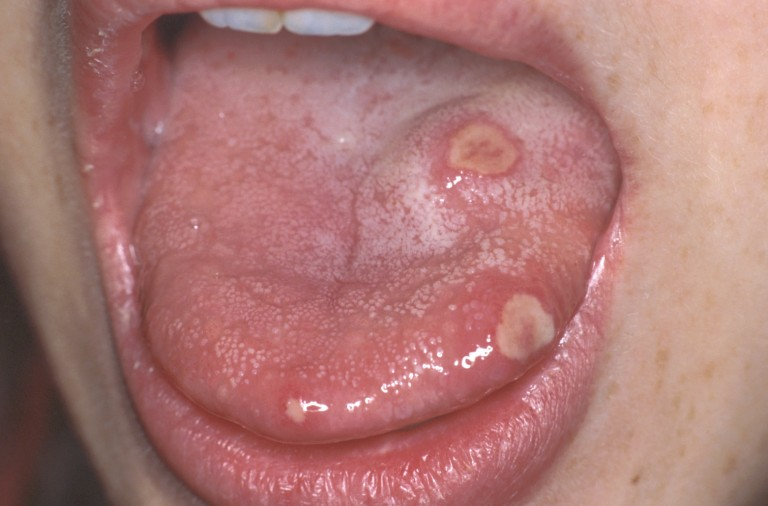 лечение запаха изо рта комочки в миндалинах