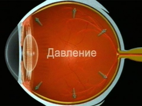 глазное давление