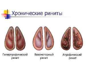 Fizicheskaya-aktivnost