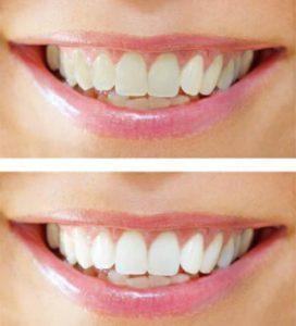 почему зубы желтые