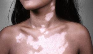 Витилиго причины появления пигментных пятен и лечение