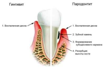 симптомы пародонтита