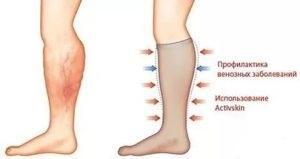 тромбоз фото ноги