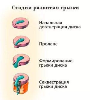 грыжа позвонков