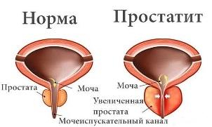 Причины простатита Причины простатита, симптомы и лечение болезни