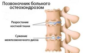 остеохондроз Остеохондроз   причины появления и как лечится недуг