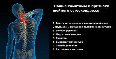 остеохондроз3 Остеохондроз   причины появления и как лечится недуг