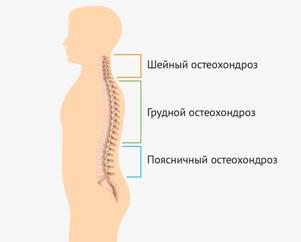 остеохондроз4 Остеохондроз   причины появления и как лечится недуг