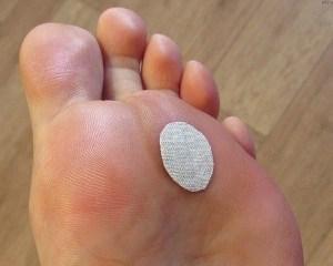6 11 Как избавиться от мозолей на ногах народными способами