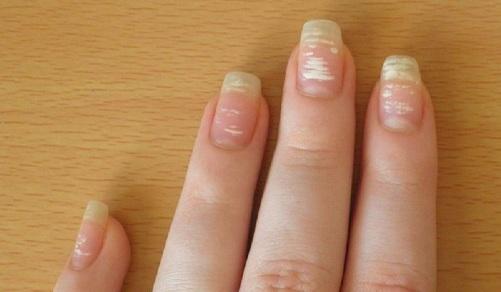 Белые пятна на ногтях Белые пятна на ногтях   отчего появляются и как лечатся