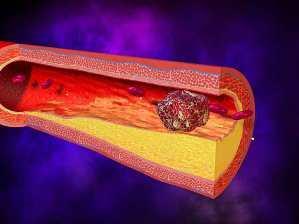 Послеоперационный тромбоз: причины развития