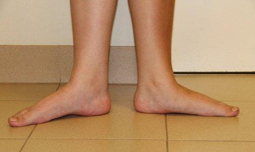 Поперечное плоскостопие – как лечить народными способами