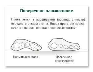 лечение плоскостопия1 Поперечное плоскостопие   как лечить народными способами