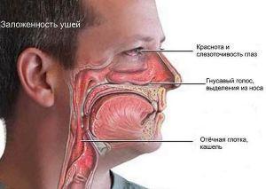 lechit hronicheskii rinit1 768x545 Хронический насморк   лечение народными средствами