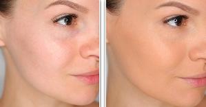 Тонировка и матирование Как правильно делать макияж в домашних условиях