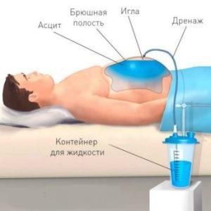 Для чего нужна откачка жидкости при асците