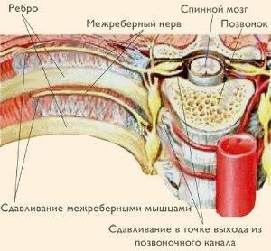 nevralgiya-simptomy