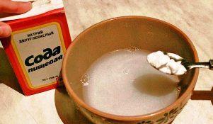 lechenie-sodoj