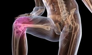 artroz 2 e1459756119444 Почему хрустят суставы по всему телу – причины