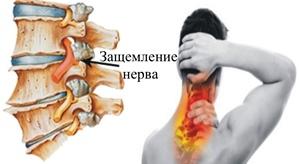 zashhemlenie-nerva