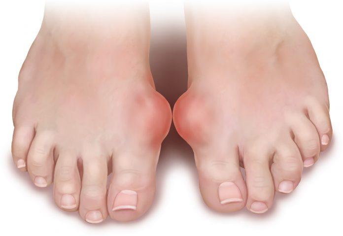 Подагрический артрит – симптомы, лечение, диета