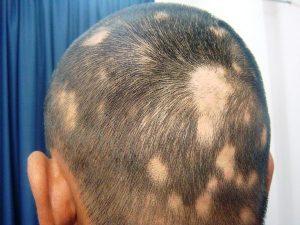 Алопеция или выпадение волос: почему выпадают волосы