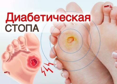 chto-takoe-diabeticheskaya-stopa