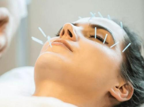 akupunkturnyj-lifting-lica