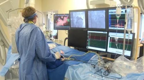 angiografiya-sosudov-nizhnix-konechnostej