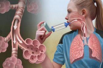 vidy-bronhialnoy-astmy